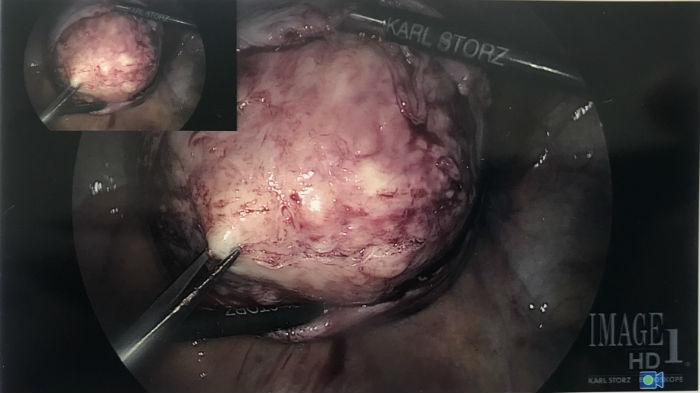 laparoscopic myomectomy procedure