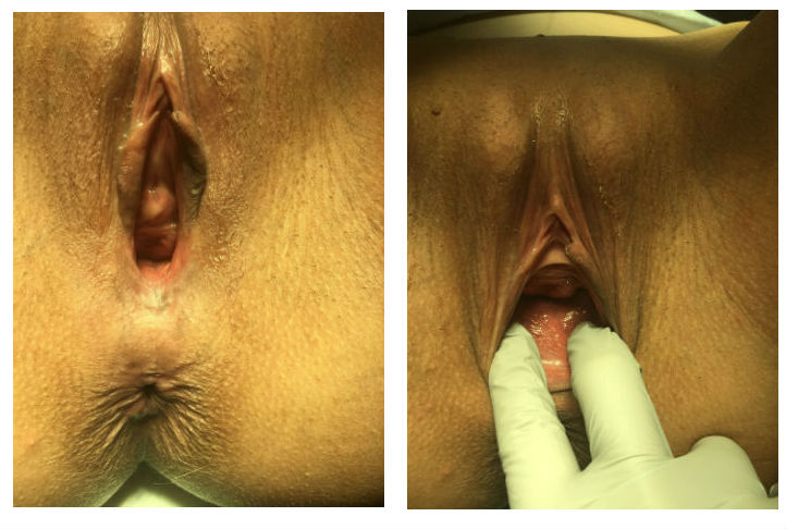 cosmetic gynecology before in los angeles