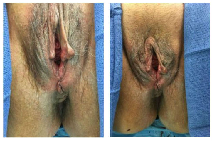 vaginal rejuvenation prolapse los angeles after
