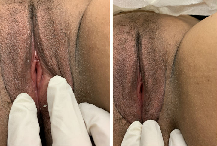 Before and after Labiaplasty in Los Angeles Glendale