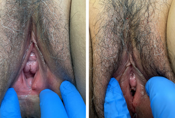 vaginal tightening before after los angeles