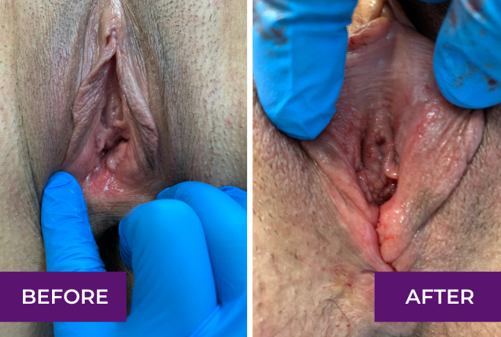 perineoplasty in los angeles
