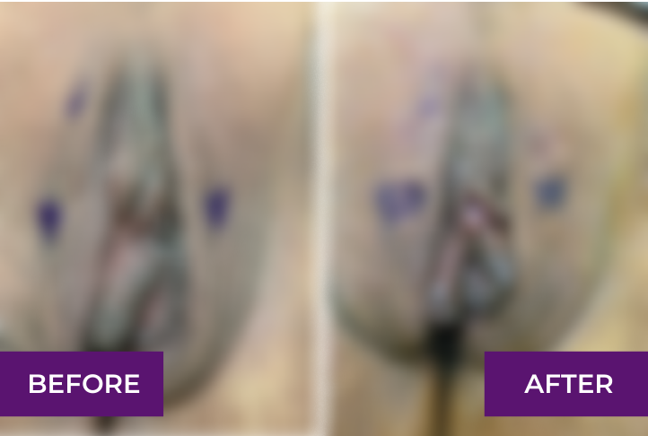 labia puff before and after in los angeles