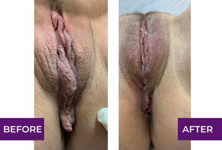 Labiaplasty, vaginal tightening, external hemorrhoidectomy under local anesthesia. Before and one month after picture.