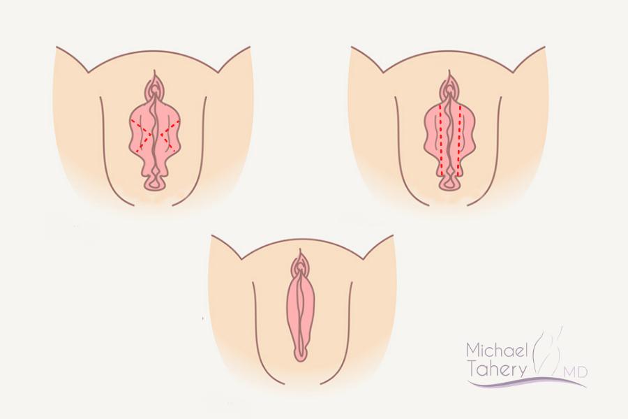 The Trim Labiaplasty Vs Wedge Labiaplasty