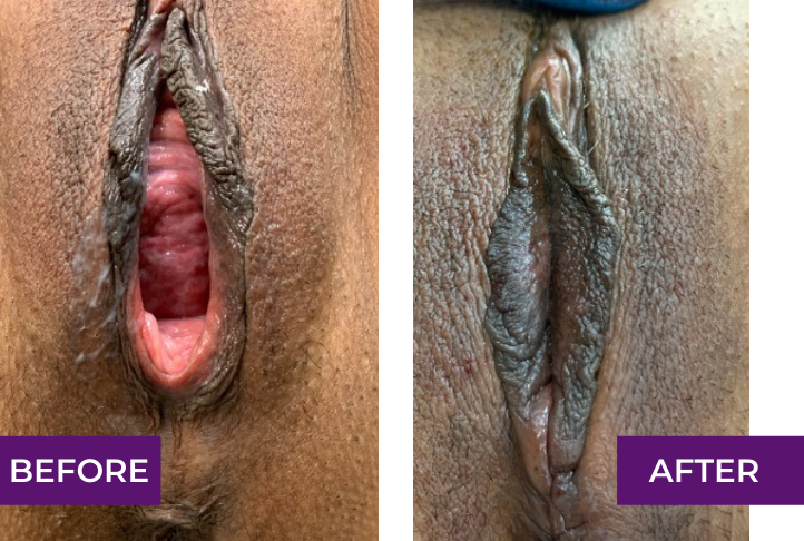Vaginal reconstruction and cosmetic perineoplasty, under local anesthesia, right after the operation