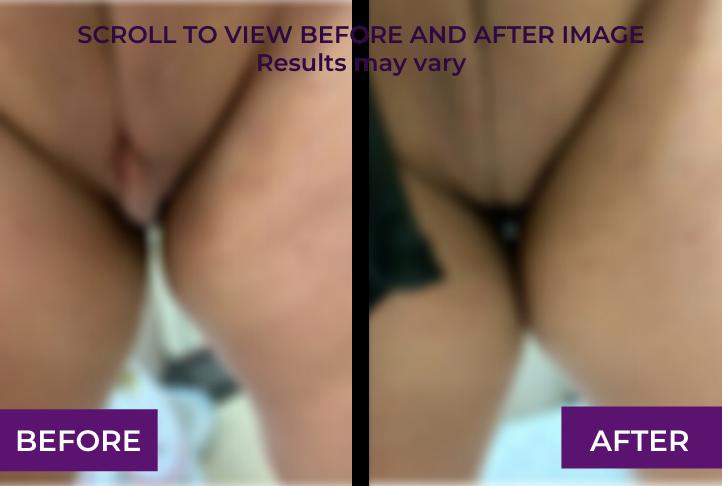 bilateral labiaplasty