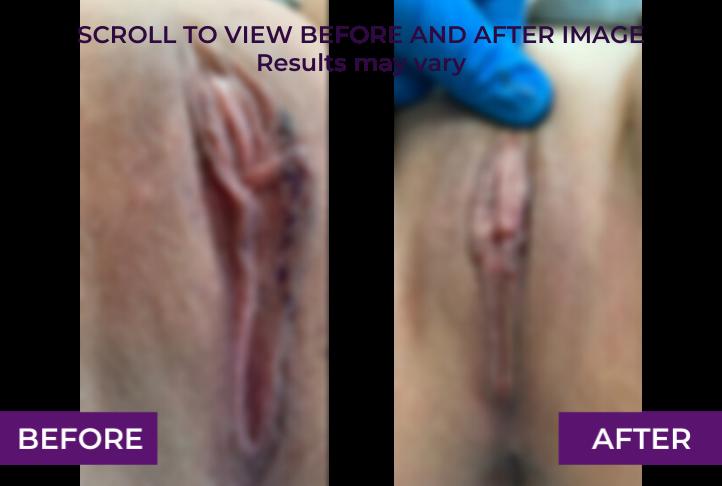 left labiaplasty