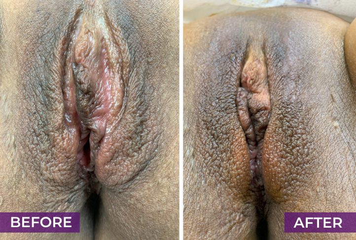 labia puffing before and after