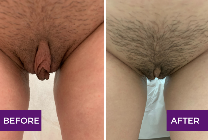 labiaplasty and clitoral hood reduction before and after