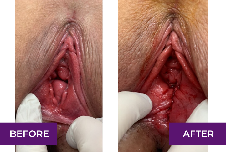 rectoroe and perineoplasty repair under local anesthesia los angeles and beverly hills