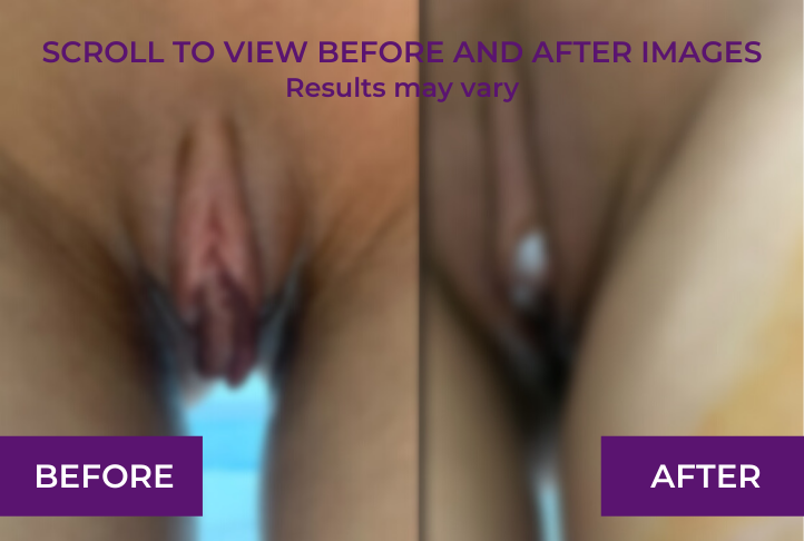Before and immediately after,bilateral labiaplasty.