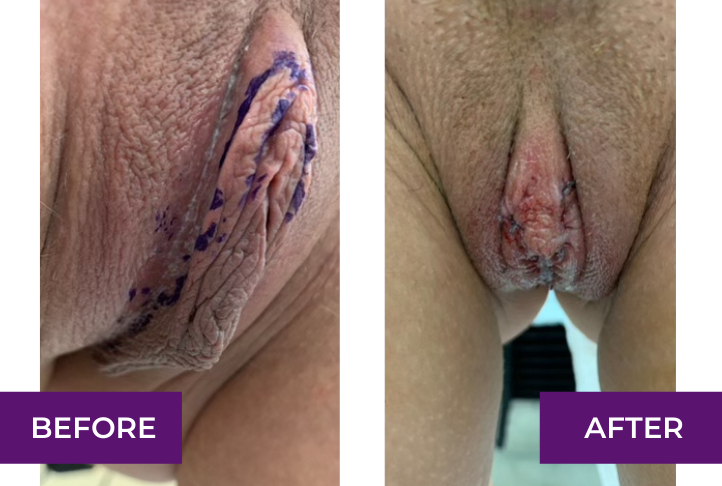 Bilateral clitoral hood reduction and labiaplasty, immediately after the operation