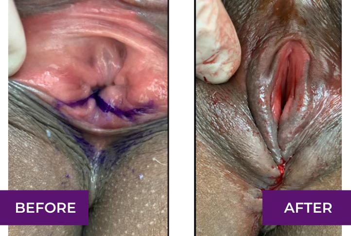 Perineoplasty, immediately after repair