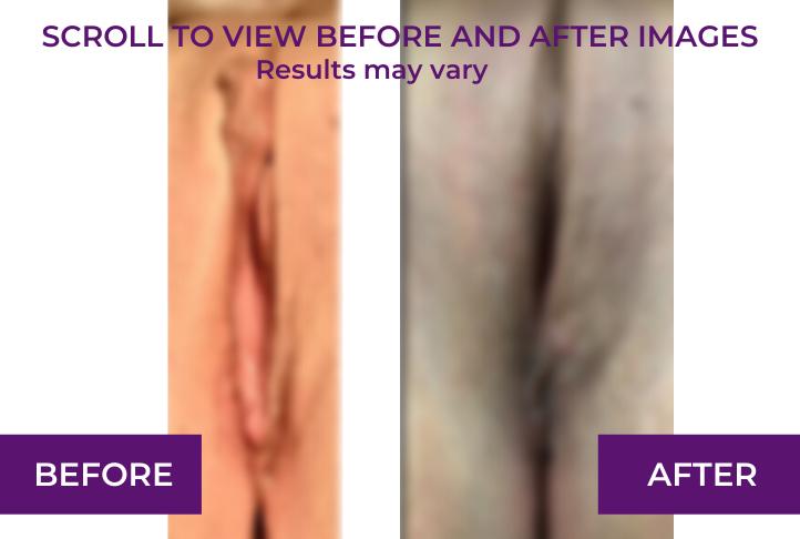 bilateral labiaplasty and perineoplasty blur