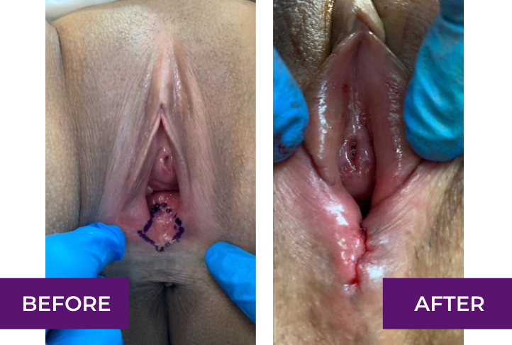 perineoplasty before and after los angeles